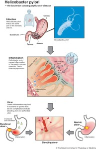 Helicobacter-Pylori-Infection